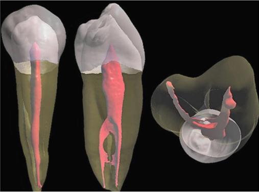 Преимущества в диагностике и лечении каналов зуба (лечение пульпита, периодонтита, повторное эндодонтическое лечение)