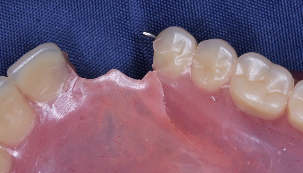 Ремонт трещины протеза
