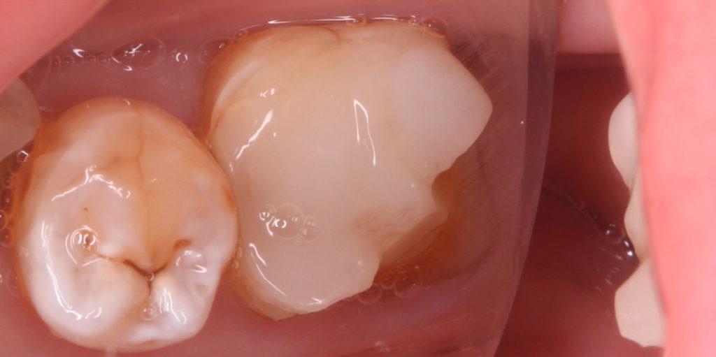Восстановление разрушенного жевательного зуба